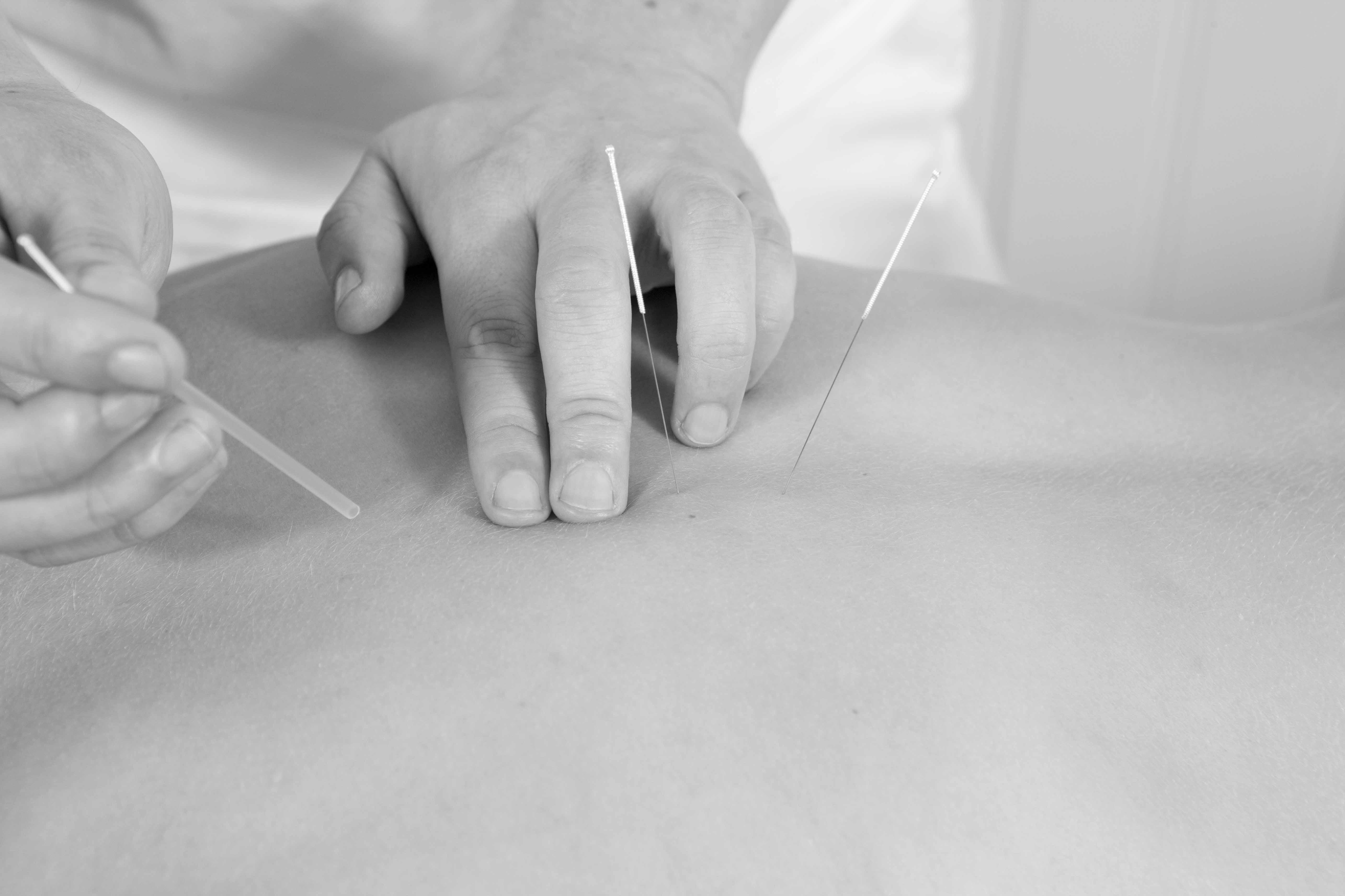 Nålebehandling behandlingsteknikker