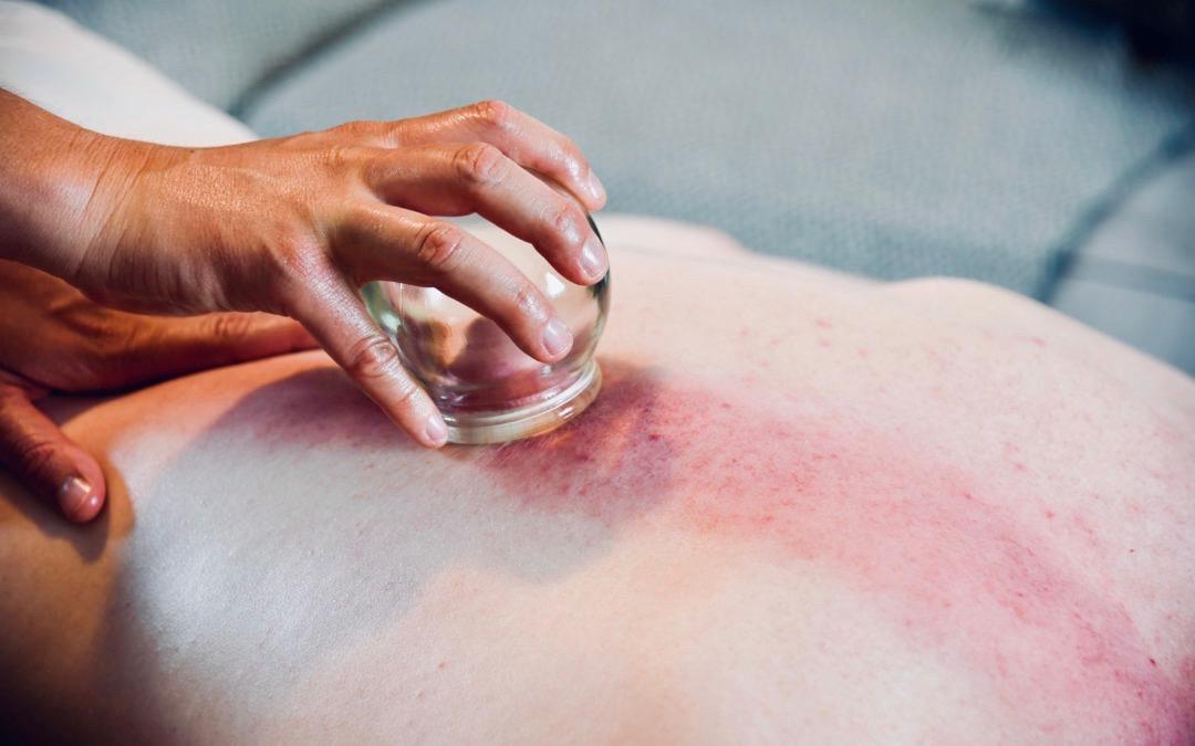 kopping massasje rygg